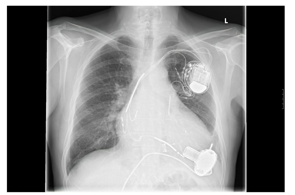 Xray of heart pump and pacemaker