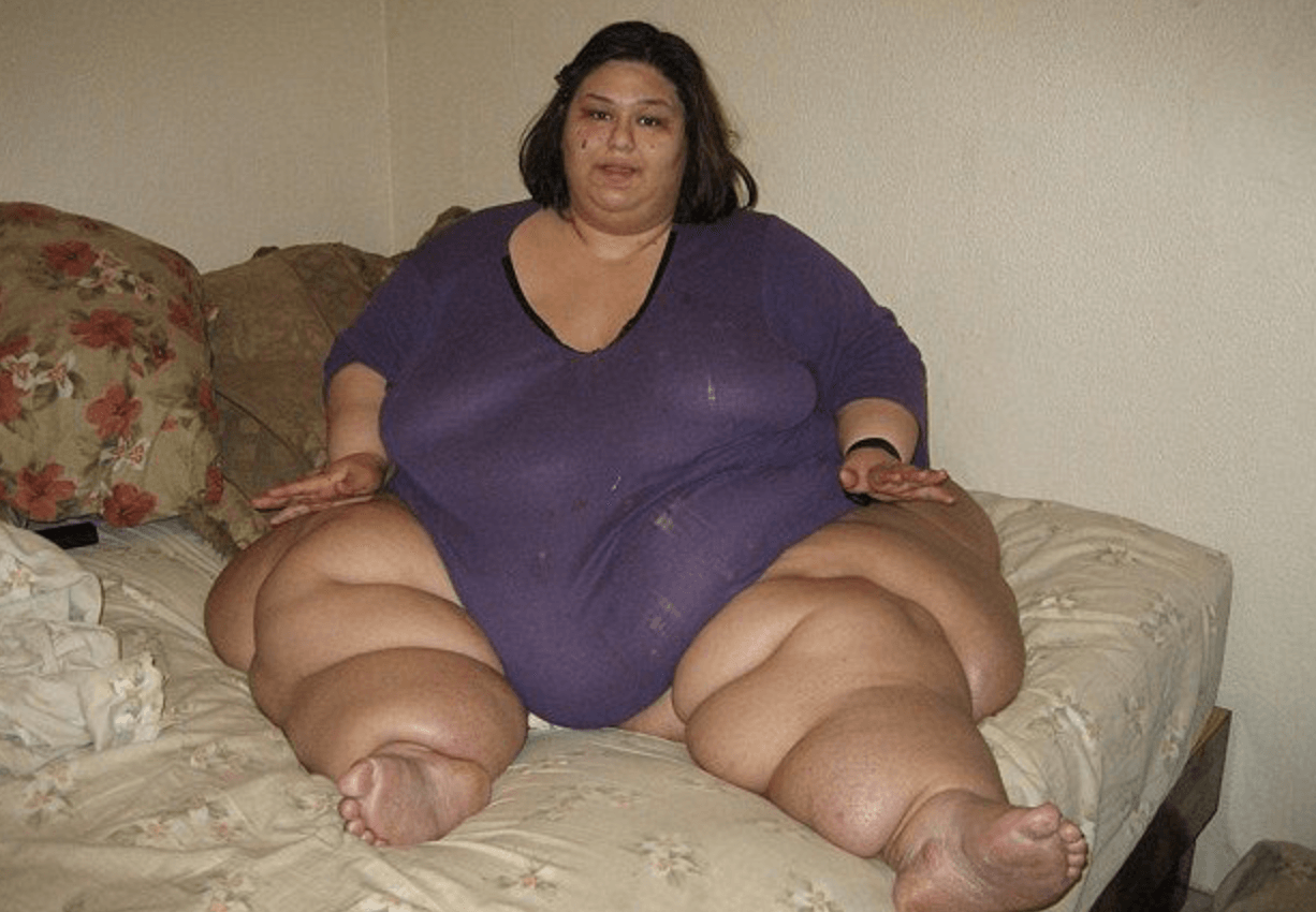Former World S Heaviest Woman Reveals What She Looked Like Before And After 800 Pound Weight Loss