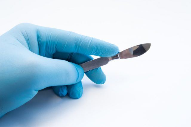 A doctor holds a scalpel.