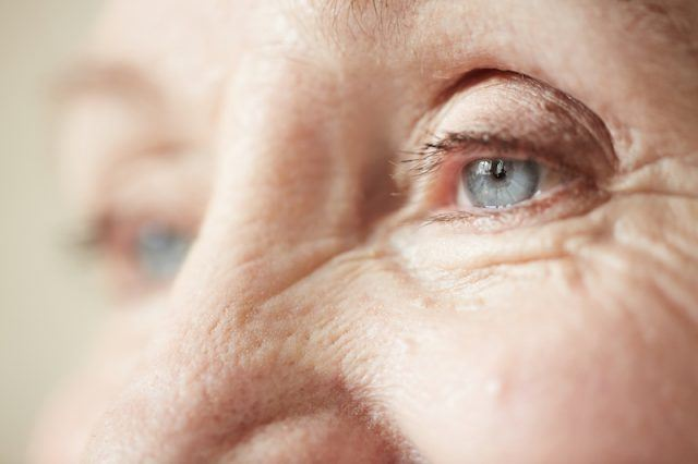 Elderly woman's eye