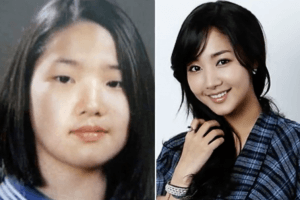 Regular People Reveal What They Looked Like Before Undergoing Extreme Plastic Surgery