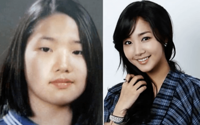 A young Korean girl's before and after photos.