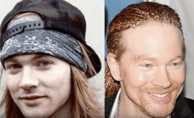 Axl Rose before and after photos.