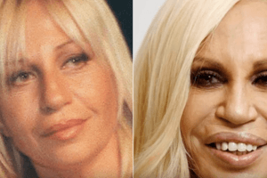 Before-and-After Photos of the Craziest Celebrity Plastic Surgery Disasters