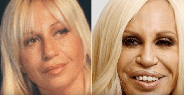Donatella Versace before and after photos.