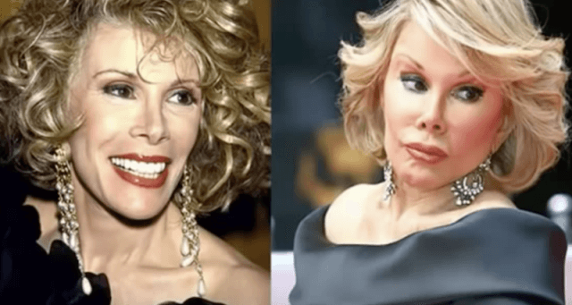 Joan Rivers before and after photos.
