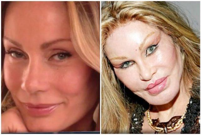 Before and after photos of Jocelyn Wildenstein.