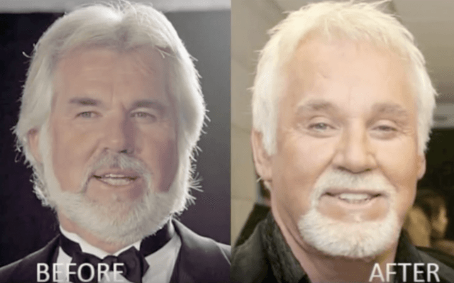 Kenny Rogers before and after.