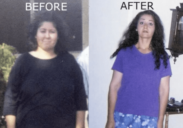 Lorrie Aria's before and after photos.