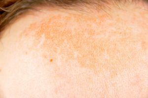 What You Don't Know About Melasma, a Skin Condition That's More Common Than You Think