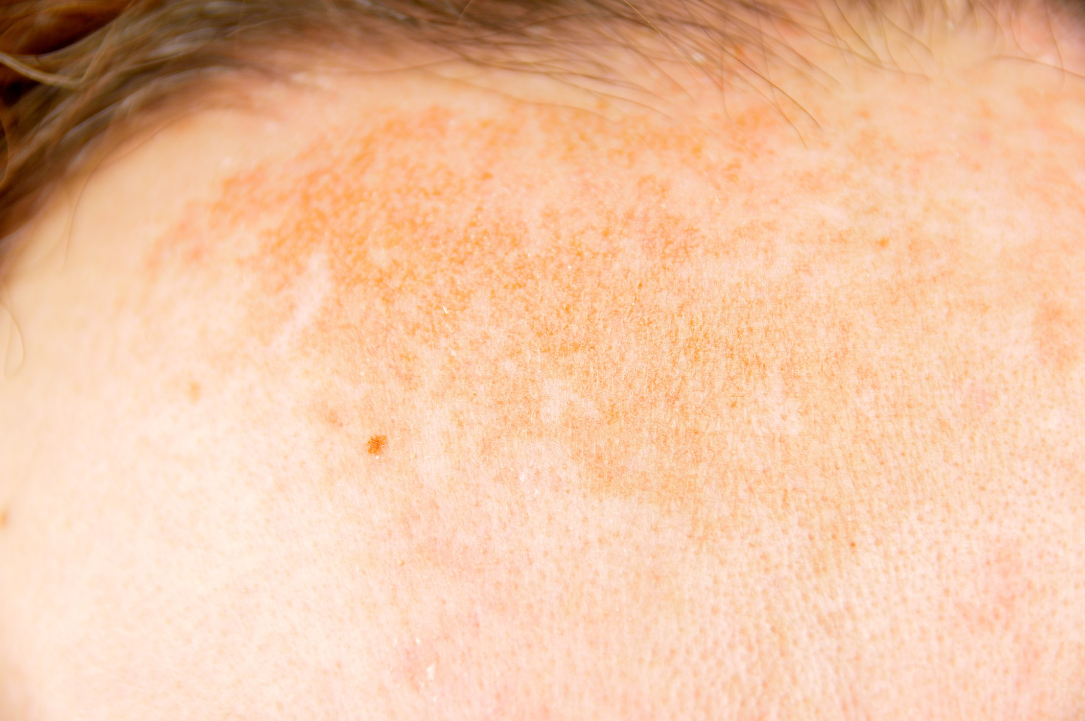 Woman with dark patch on forehead skin