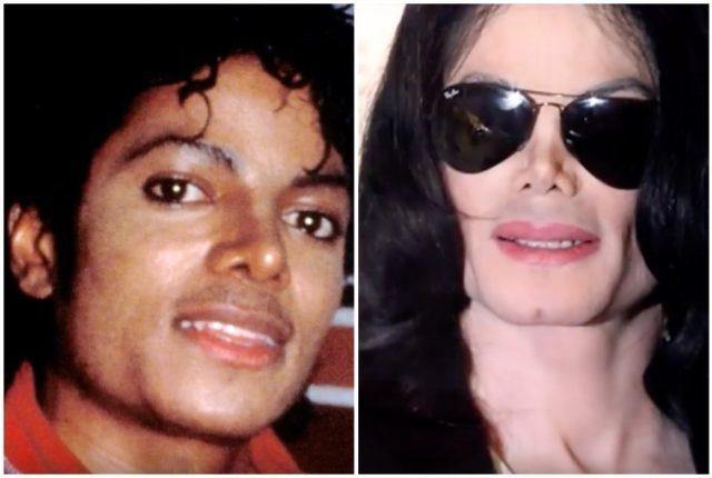 Michael Jackson before and after comparison.