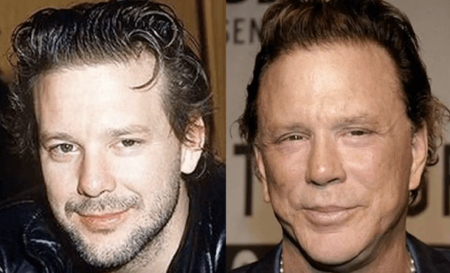 Celebrity surgery for