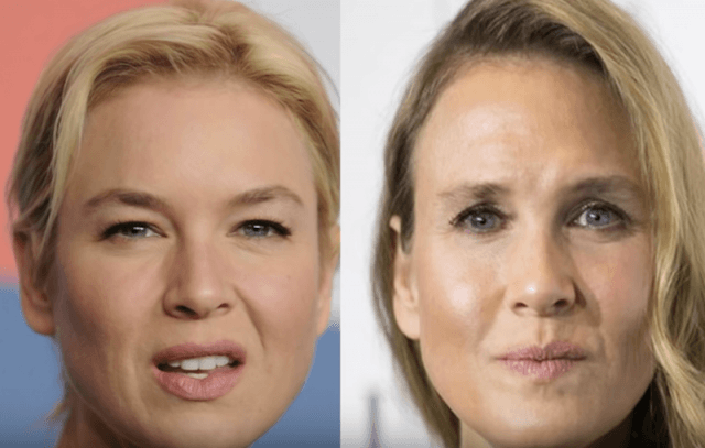 Renée Zellweger before and after photos.