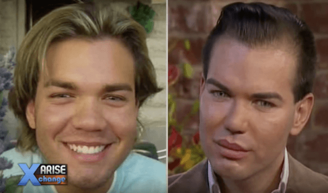 Before and After of Human Ken Doll.