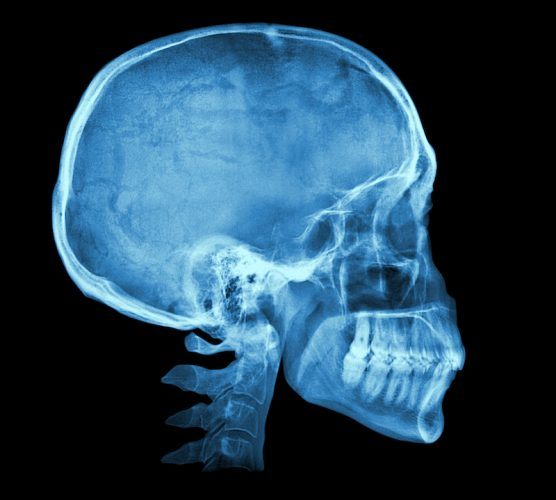 An X-ray of a skull.