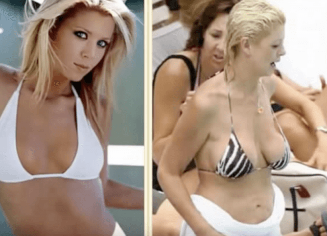Celebrity plastic surgery before and after heidi montag