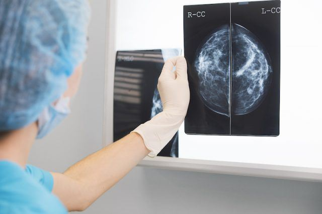 A doctor observing a mammogram of an X-ray.