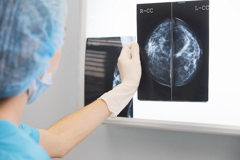 Nurse holding an X ray