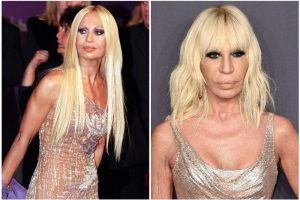 Plastic Surgery Addicts: Hollywood Stars Who've Had the Most Plastic Surgery