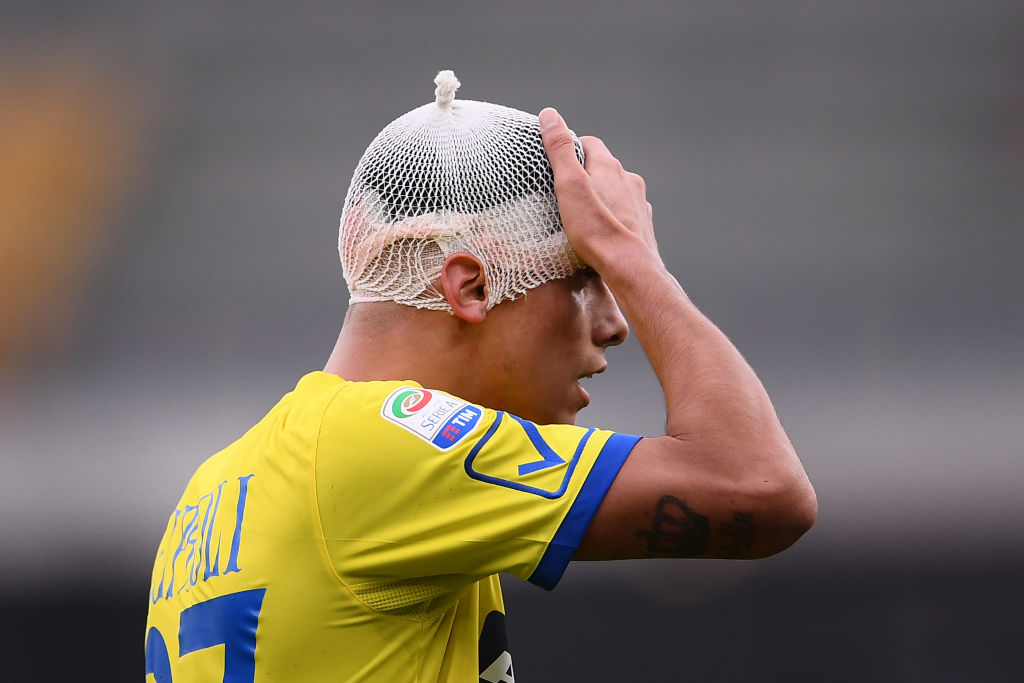 Chievo defender's Fabio Depaoli touches his head after an injury