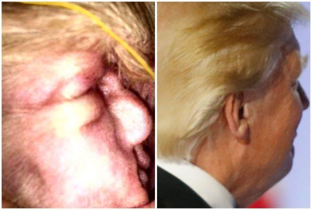Donald Trump and dog ear collage.