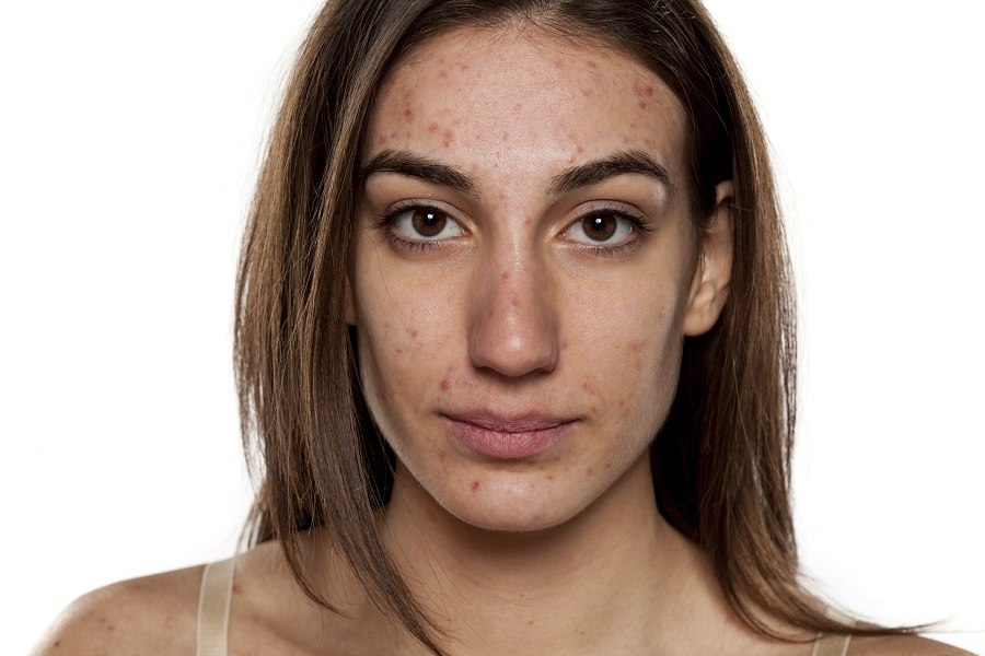 young women with problematic skin