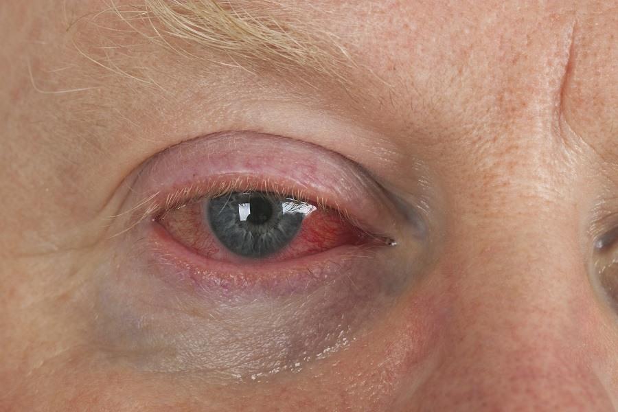Close up shot from man's wrinkled tired irritated bloodshot eye.