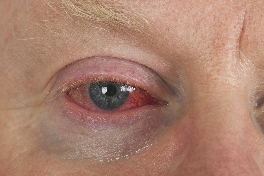 Close up shot from man's wrinkled tired irritated bloodshot eye.