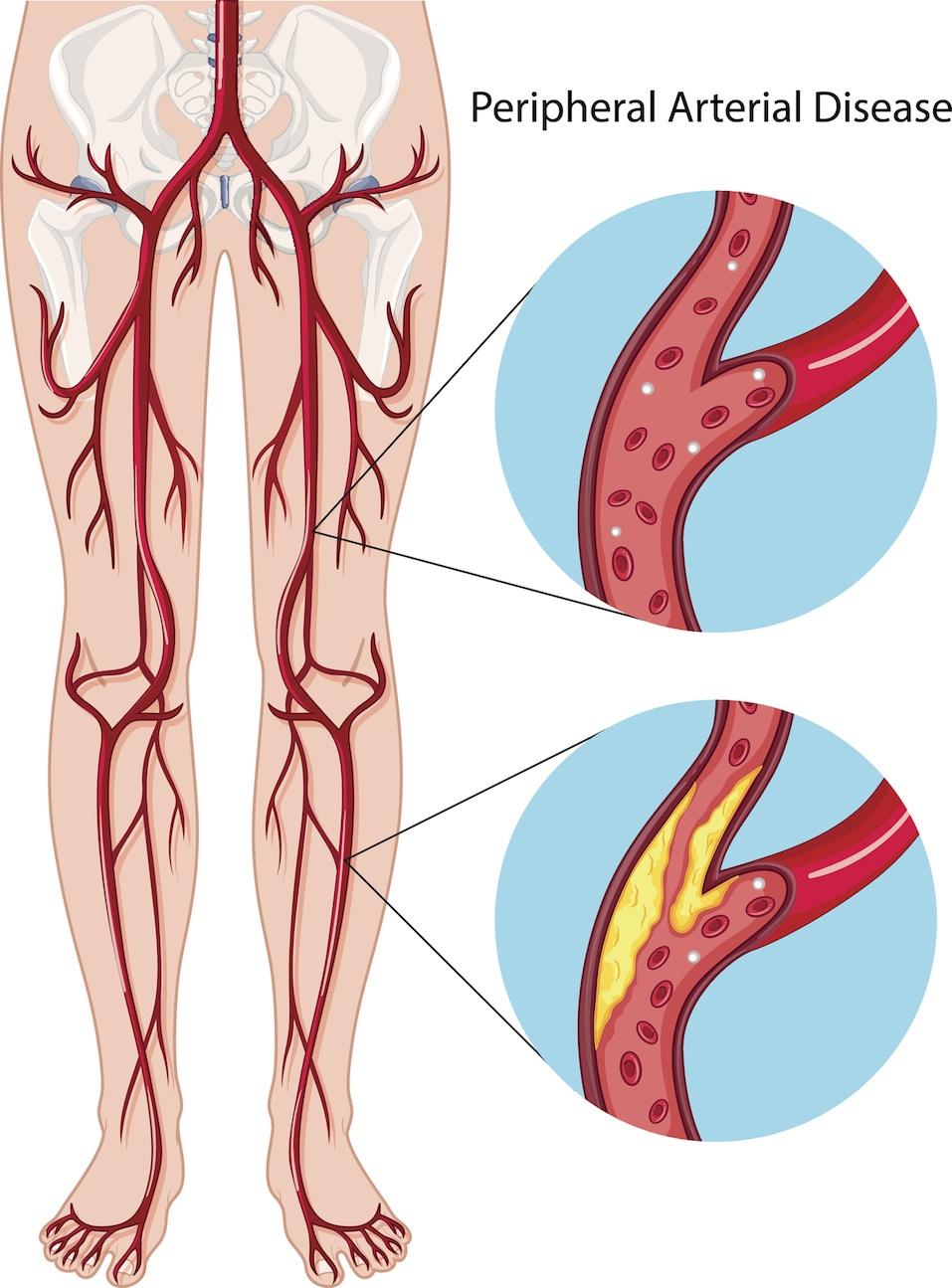 Peripheral arterial disease diagram illustration