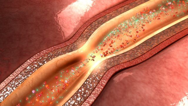 Coronary circulation is the circulation of blood in the blood vessels