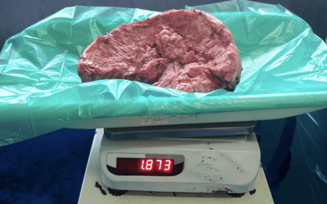 The large tumor placed on a scale.