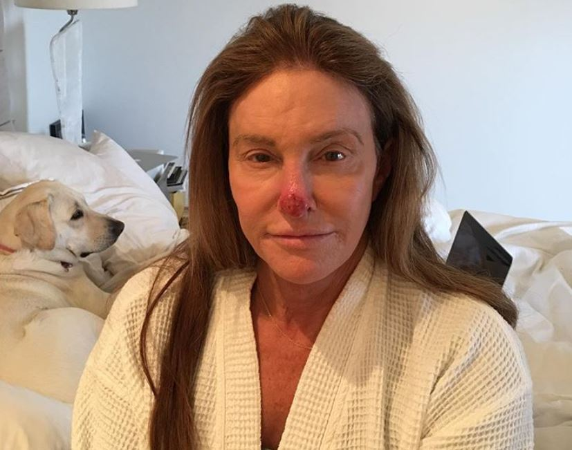Caitlyn Jenner post about skincare and her nose