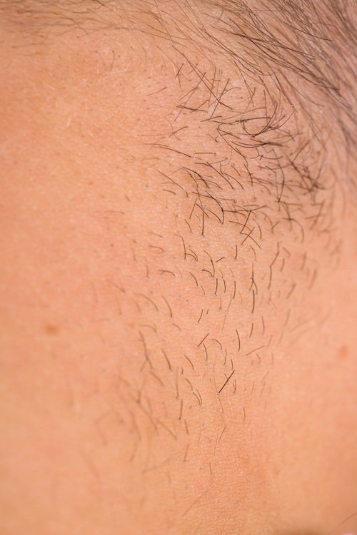Body hair.