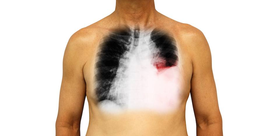 A human chest showing lung cancer