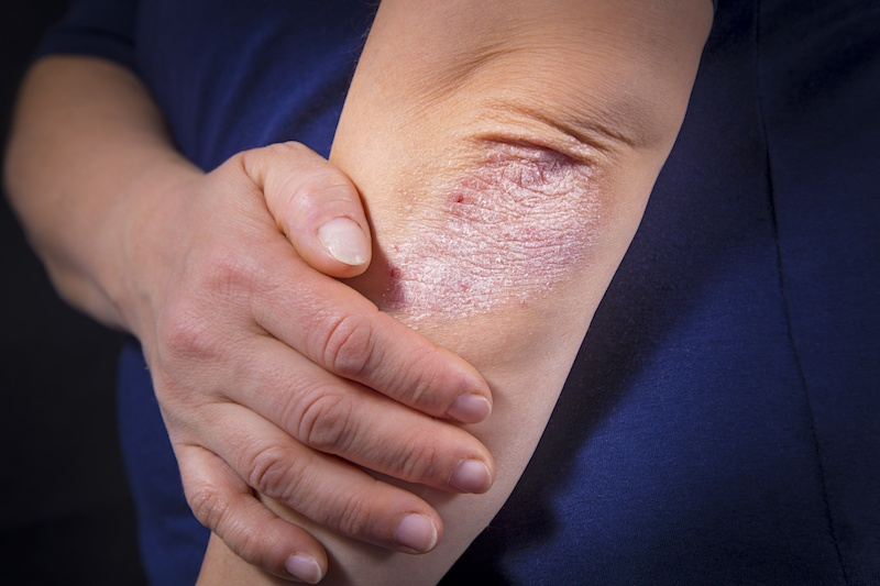 A skin condition, Psoriasis
