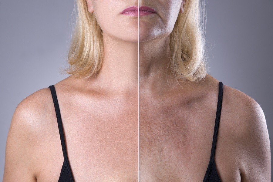 Side by side images of a woman's skin