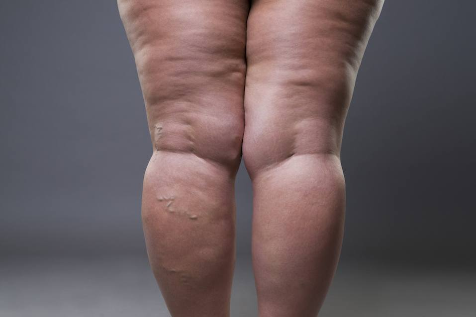 Female legs with cellulite and varicose veins