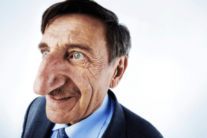 Photos of Real People Who Hold World Records For Crazy Physical Irregularities