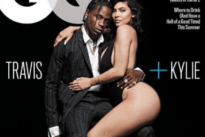 Here's How Kylie Jenner Really Got That Scar On Her Leg