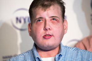 How a Face Transplant Works (and How Risky the Procedure Is)