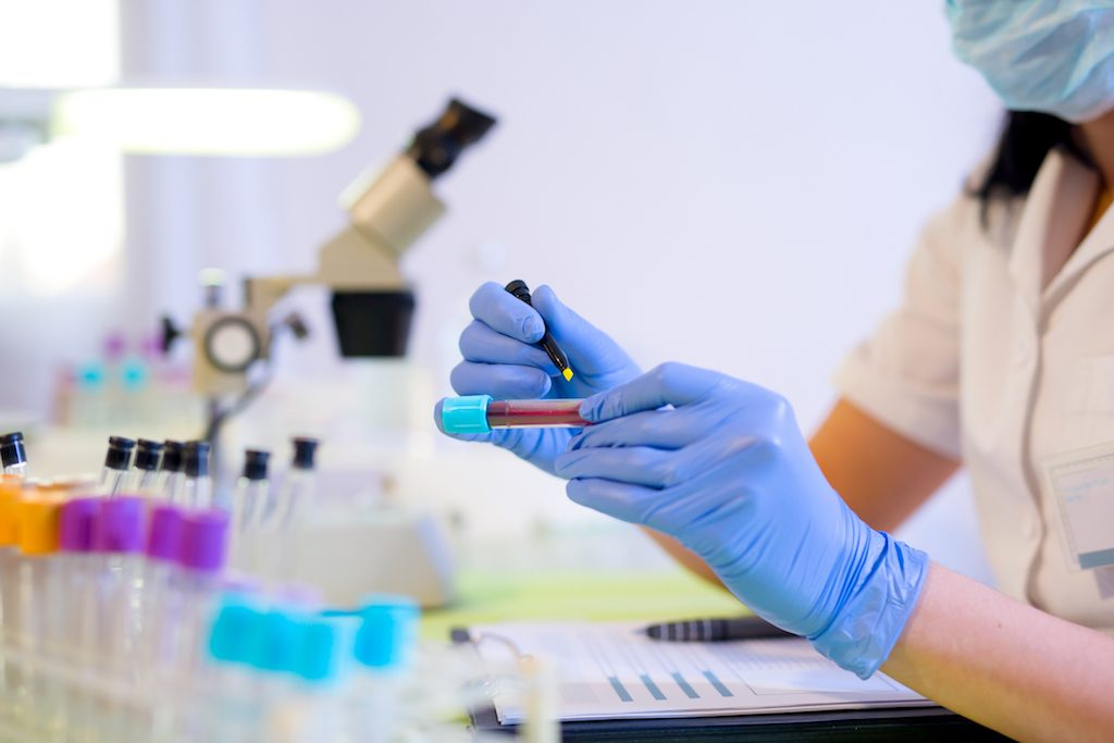 Female scientist with a blood test