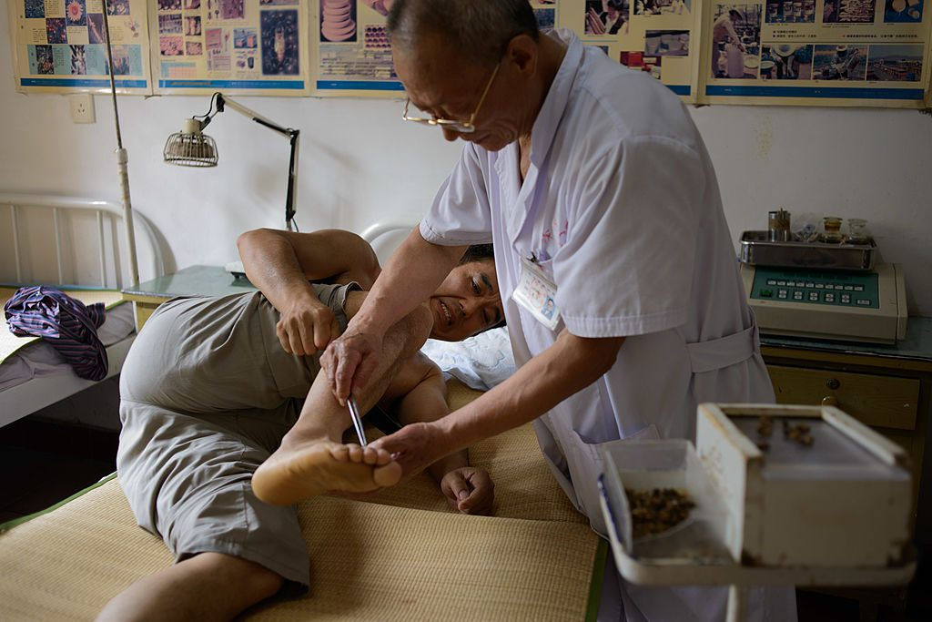 Doctor of traditional Chinese medicine administers a beesting.