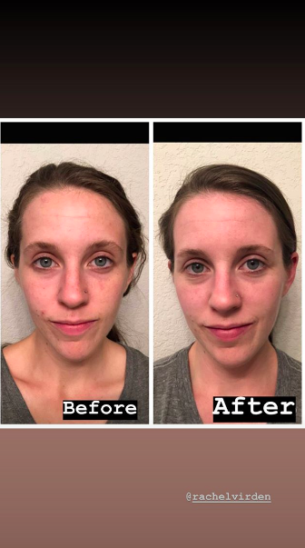 Jill Duggar's Instagram Story about her skincare routine
